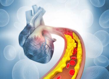 Control de Colesterol y triglicéridos