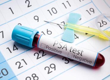 Examen de Próstata en Sangre